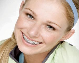 unidental pasta dientes brackets 2