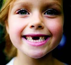 unidental dientes leche