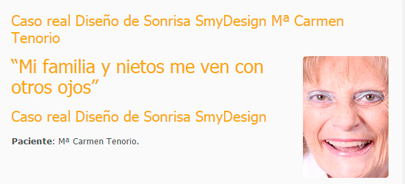 Caso real Diseño de Sonrisa SmyDesign Mª Carmen Tenorio