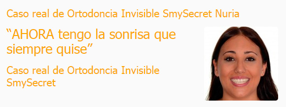 Caso real de Ortodoncia Invisible SmySecret Nuria