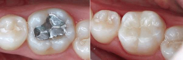 Unidental caries