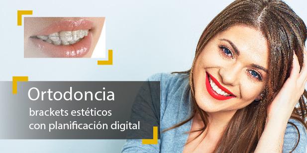 Tratamiento Ortodoncia Digital