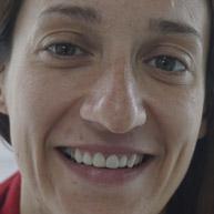 Maica Muñiz Seoane Diseño de sonrisa