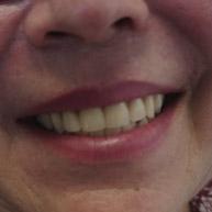 Olivia-Fernandez-Protesis-sobre-implantes-caso