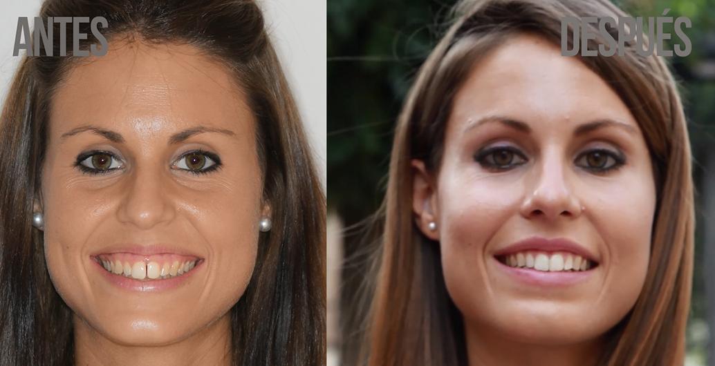 Caso paciente real de Ortodoncia: Irene