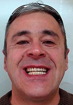 Paciente Carlos Aluche Unidental