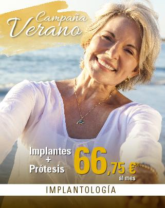 Clinicas Unidental Promociones Verano Prótesis sobre Implantes