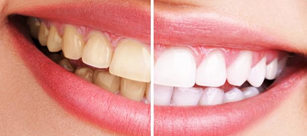 Blanqueamiento dental en clínicas Unidental