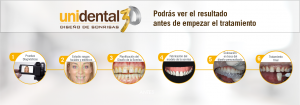 Diseño de Sonrisas Undiental