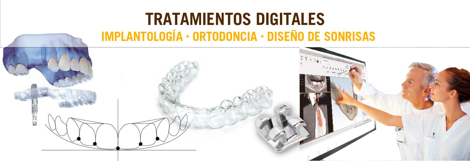SLIDER-6-Tratamiento-Digitales-abril
