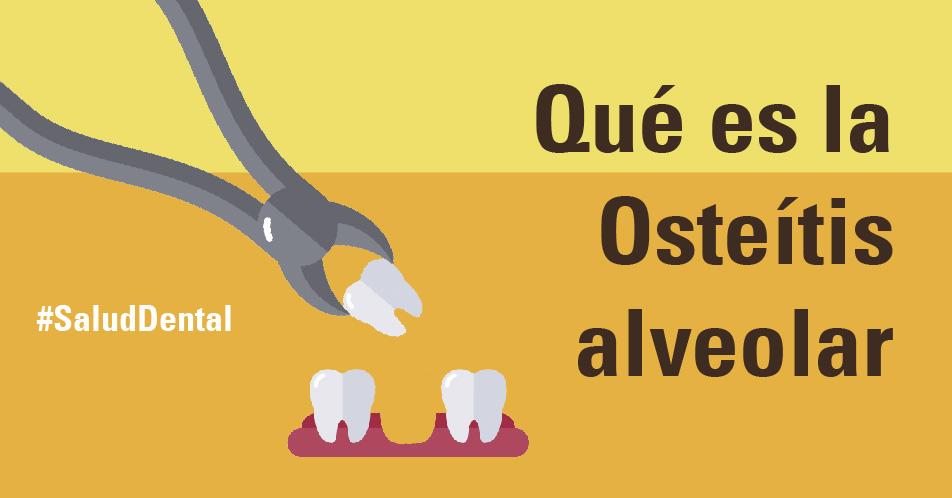 Blog Qué es la osteítis alveolar