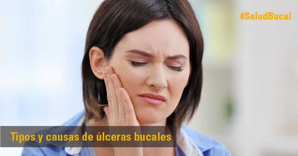 Blog causas tipos ulceras bucales