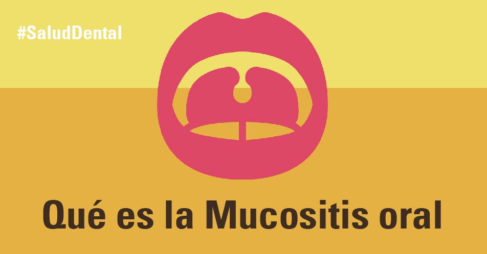 Que es la mucositis oral