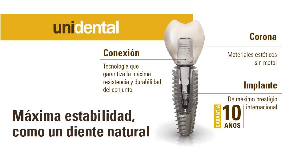 Dientes nuevos con implantes para recuperar estabilidad natural